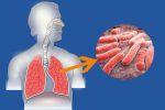 Туберкулез - смертельный недуг