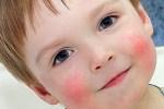 Что делать, если у ребёнка дерматит